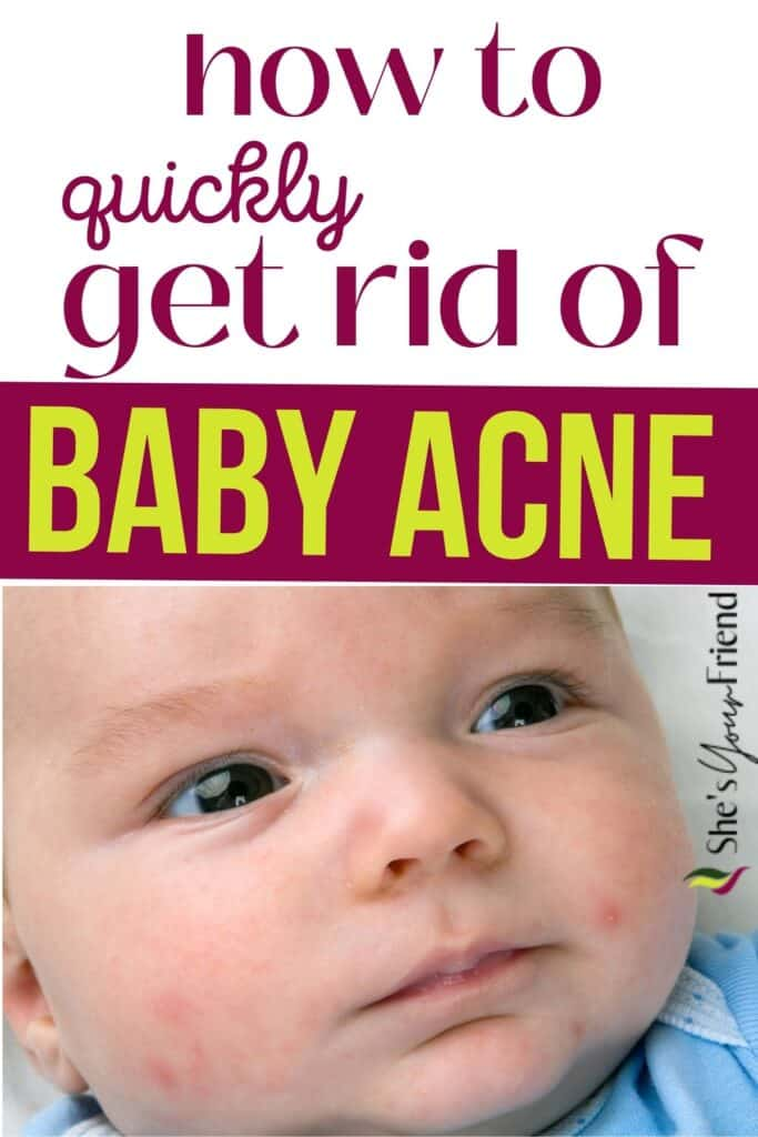 a baby with acne on his face and text overlay that reads how to quickly get rid of baby acne